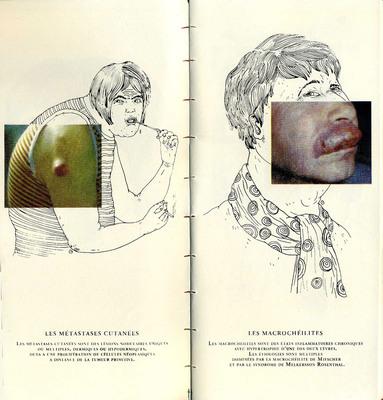 Double page extraite de Sublime maladie, Céline Guichard, éd. Strane Dizioni - 2012
